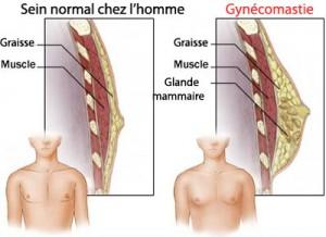 Gynecomastie Tunisie