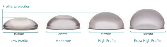 augmentation mammaire par implants ronds
