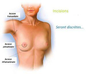 augmentation mammaire tunisie une opération douloureuse ?